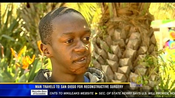 Blessing Makwera was 15 years old when the accident happened