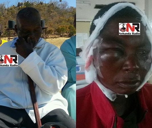 Madzibaba Wimbo and one of his wives after she was beaten trying to visit the abducted prophet