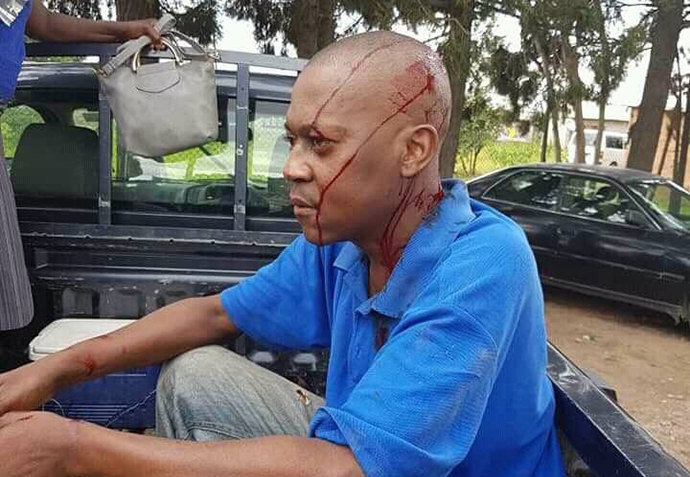 An activist from Joice Mujuru's party who was stoned by suspected Zanu PF youths