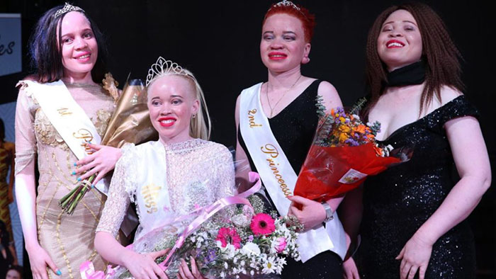 """University of Zimbabwe Social Work student Sithembiso Mutukura was crowned Miss Albinism Zimbabwe at an inaugural """"Beauty beyond the skin"""" pageant held at a Harare joint. Monalisa Manyati, 22, and Makaita Ngwenya, 21, landed the first and second princess titles respectively, while Jenifer Madinza was crowned Miss Personality."""
