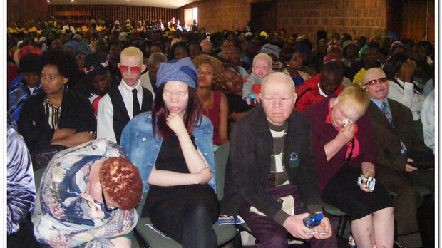 People with albinism and other mourners listen to proceedings during the funeral of kidnapped and murdered albino girl Gabisile Shabane and Nkosikhona Ngwenya in Emalahleni in Mpumalanga. Picture: ANA/Balise Mabona