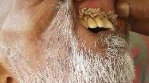 Maggots were found in a patients mouth at RK Khan. Picture: Supplied
